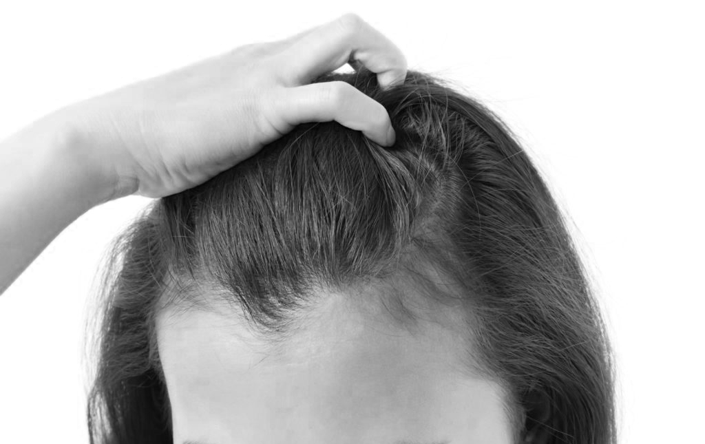 Päänahan tyypillisimmät ongelmat